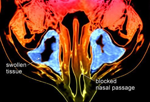 MRI of inflammation within the sinus cavity.