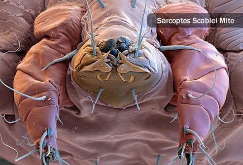 Skin parasites including tiny, burrowing creatures like scabies and hookworms, and others that breed on your skin, like head lice.