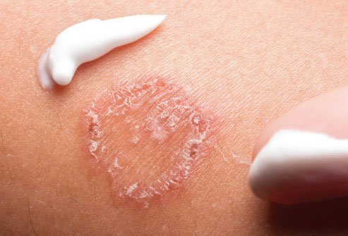 For bacterial skin infections, your doctor may prescribe antibiotics.