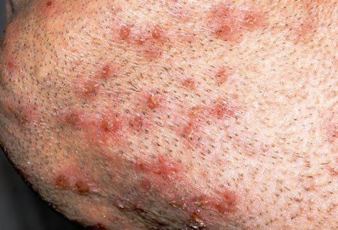 Sometimes poorly maintained hot tubs can spread bacterial infections in a condition known as hot tub folliculitis.