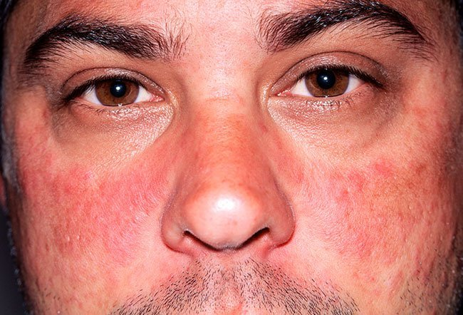 A butterfly rash across the face could be a sign of lupus.