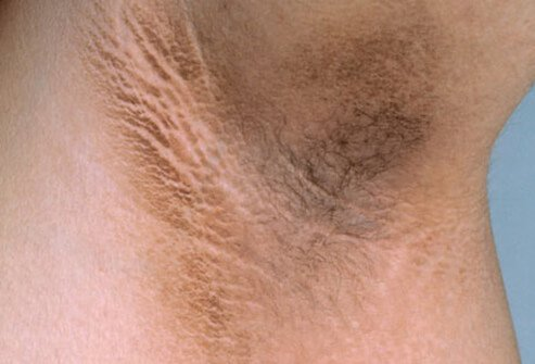 Velvet plaque (acanthosis nigricans) around the armpit may suggest diabetes.