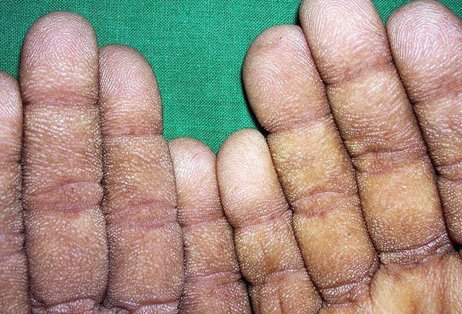 Acanthosis nigricans, accompanied by tripe palms, is most likely linked to gastric cancer.
