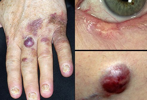 Picture Of Less Common Skin Cancers Picture Image On
