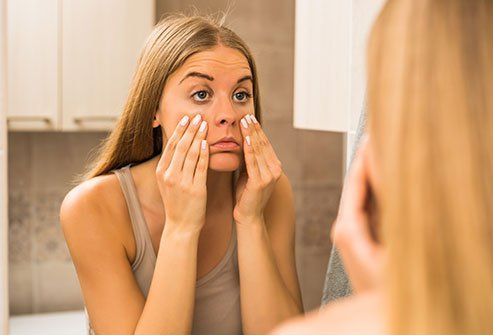 Sleep deprivation may leave hormones out of whack, affecting your skin.
