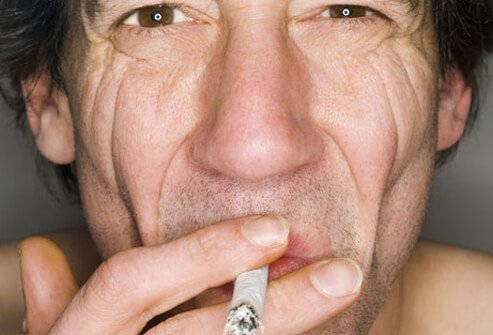A man smoking with crow's feet and wrinkles.