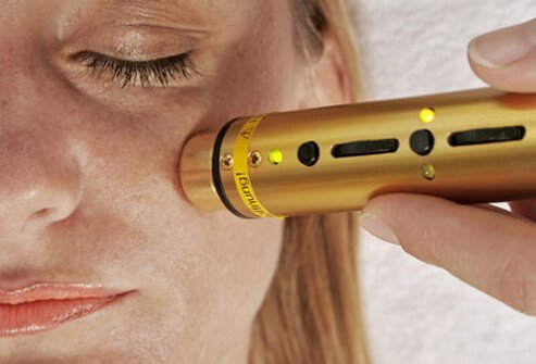 A woman having laser therapy performed on her face.
