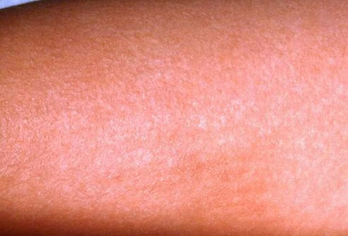 If your sore throat is associated with a fine, sandpaper-like pink rash on the skin, it could be scarlet fever.