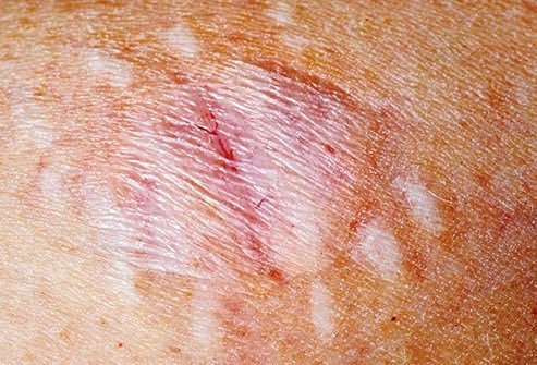 Purple or bluish skin reactions sometimes indicate brown recluse spider bites.