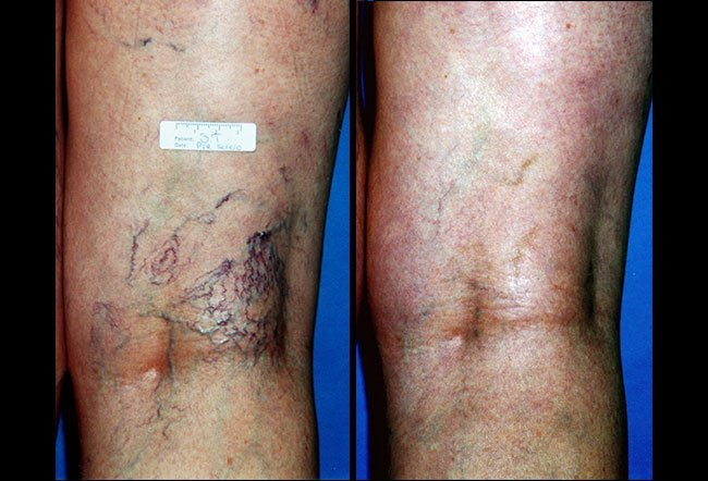 Treatment with sclerotherapy can require multiple treatment sessions, and healing time may vary from person to person.