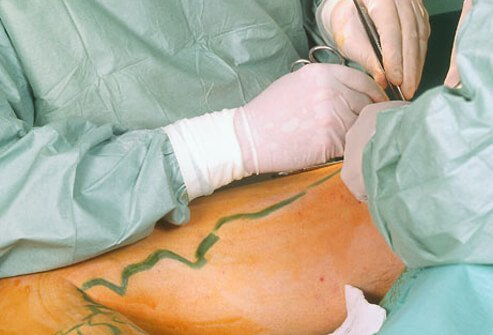 Surgery is an option for more severe cases of varicose veins.