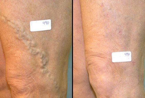 Vein ligation and stripping is frequently successful at resolving both the symptoms and cosmetic appearance of varicose veins.