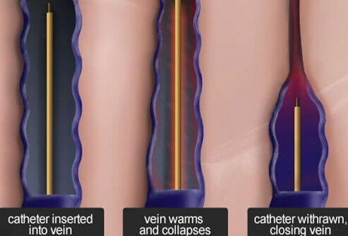 Endovenous radiofrequency ablation is a minimally invasive procedure that is similar to endovenous laser treatment.