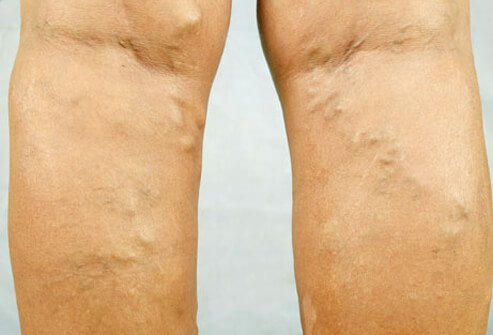 Varicose veins are abnormally enlarged veins that appear most often on the legs.