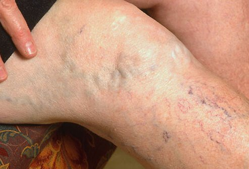 Spider veins and varicose veins often cause no symptoms or signs other than their undesirable cosmetic appearance.