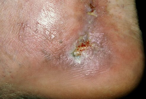 Though spider veins and varicose veins rarely cause serious complications, some people may develop skin ulcers.