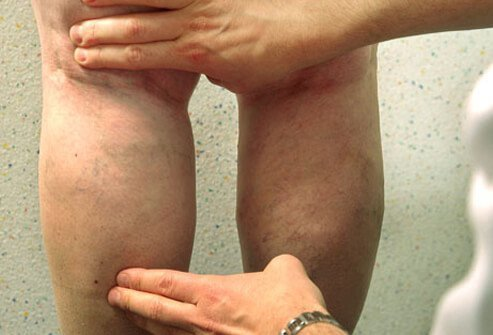Your health care professional can diagnose spider veins and varicose veins by closely examining the affected areas, which are usually on the legs.