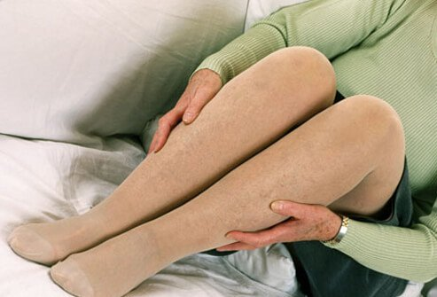 Support stockings, also called compression stockings, are an easy intervention to use at home to help alleviate symptoms in your legs.