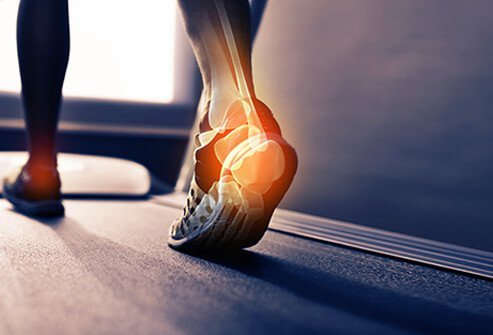 A person on the treadmill with the Achilles tendon highlighted.