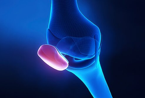 An illustration of the knee with the patella highlighted.
