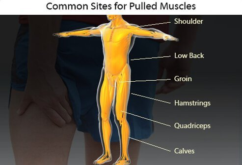 Illustration showing  the areas of the body where a pulled muscle can occur.