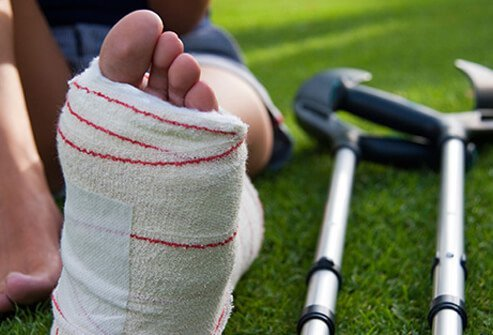 A person with a leg cast lying on the grass next to crutches due to a stress fracture.