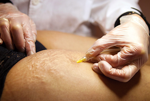 See a dermatologist for professional assistance dealing with stretch marks and other skin conditions.