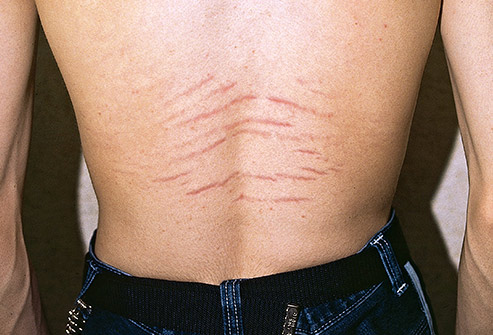 Many women get stretch marks but men can get them, too.