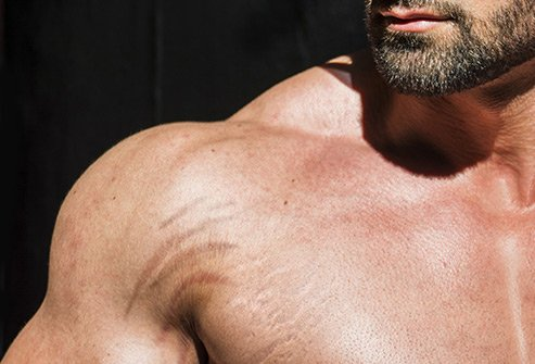 Rapid weight gain or increase in muscle mass may lead to stretch marks.