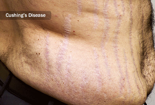 Conditions that affect hormone levels and connective tissue increase the chance of stretch marks.