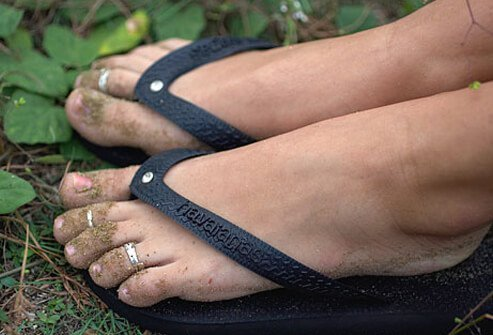 Flip-flops are not appropriate footwear to protect your feet against injuries and bug bites while outside.