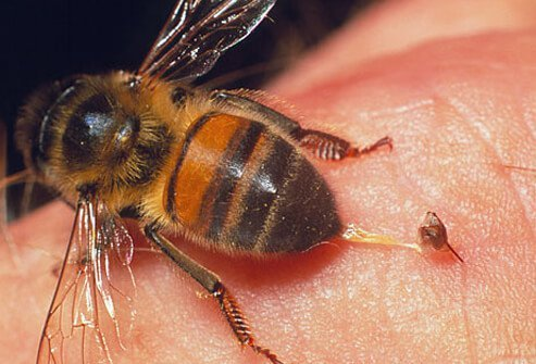 Bee sting reactions may range from mild to potentially life-threatening.