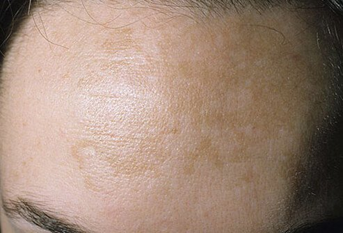 A photo of melasma (pregnancy mask) on the forehead of a woman.