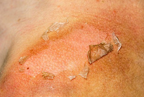 Sunburned skin uses white blood cells from your immune system to heal