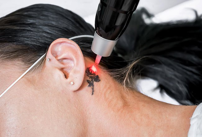 Tattoo on forearm before and after removal therapy.