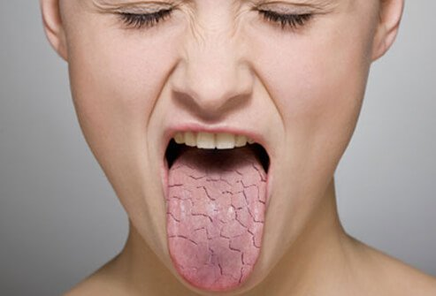 A woman with a dry mouth.