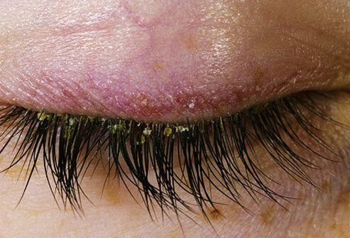 This condition can produce an itchy, scaling red rash on the scalp, in the ears, on the upper eyelids, brows, forehead.