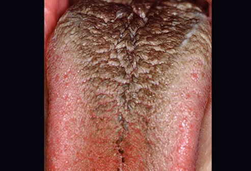 Black hairy tongue occurs when the tiny bumps on your tongue seem increase in size, trapping bacteria.