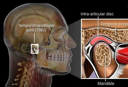 TMJ (temporomandibular joint) syndrome is a problem with the tiny, sliding hinge joint just in front of your ear.