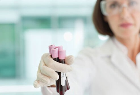 A lab technician using blood samples to diagnose type 1 diabetes.