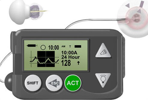 A continuous glucose monitoring system.