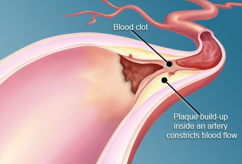Illustration of plaque in artery.