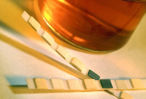 Photo of urine sample and test strips used to test kidney health.