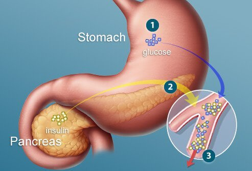 Insulin is a hormone that allows the body to efficiently use glucose as fuel.