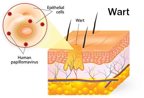 Warts are noncancerous skin growths that are often flesh-colored and contagious.