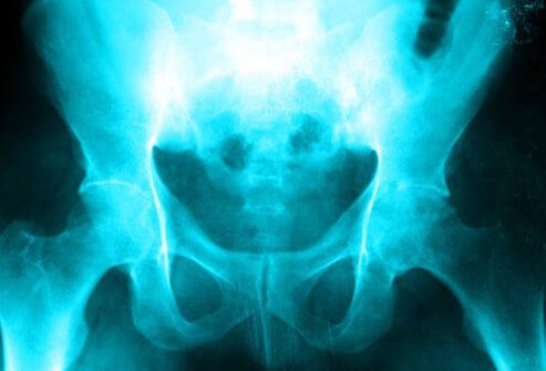 Photo of hip X-ray.