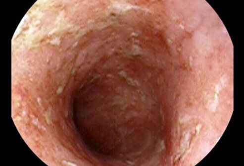 Photo view of colonoscopy.