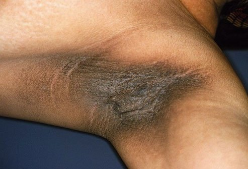 Acanthosis nigricans causes dark, thick, velvety patches of skin.