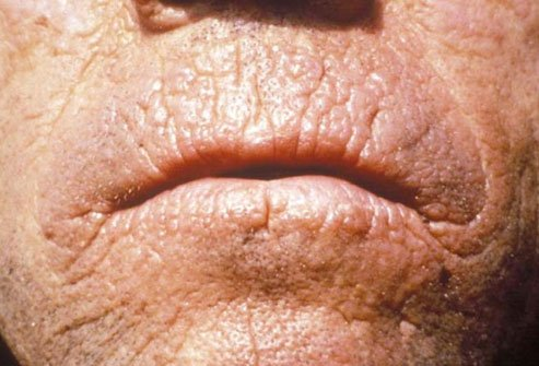 Erythropoietic protoporphyria causes difficulty breaking down protoporphyrin in the skin.