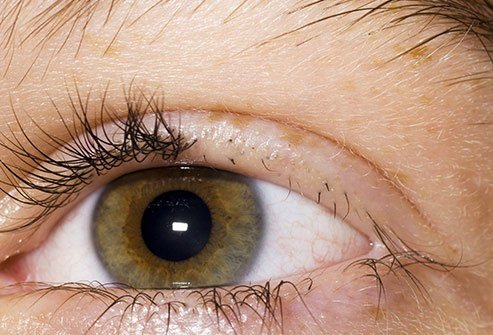 Pulling out eyelashes is one potential sign of trichotillomania.